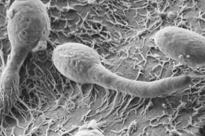 Бактероиды и грибки Кандида