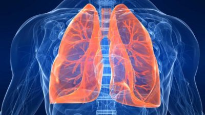 hg201-lungs-emphysema-chronic-pulmonary-fs