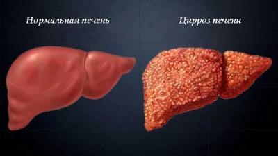 Формы заболевания и причины