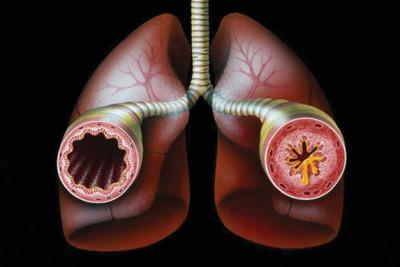 Воспалительные процессы в органах дыхания и дыхательных путях