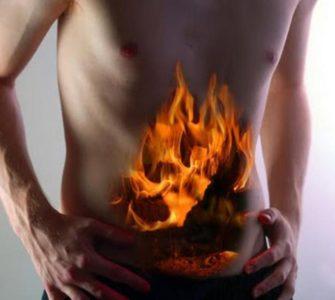 Этиология возникновения изжоги