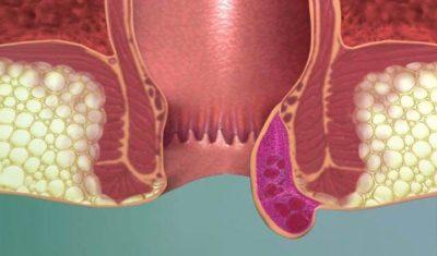 Лечение раннихформ недуга