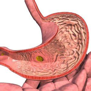 Гипертрофическиое поражение слизистой желудка