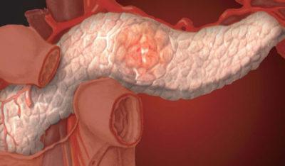 Нарушение работы поджелудочной железы и желчного пузыря фото