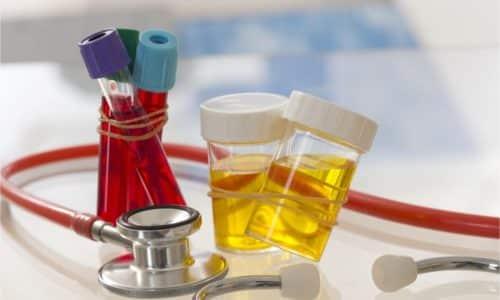 При подозрении на панкреатит врач обязательно направляет на общий анализ крови и мочи, химический состав которых изменяется при любой патологии поджелудочной железы