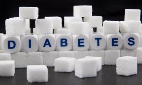 Рак поджелудочного органа способствует развитию сахарного диабета