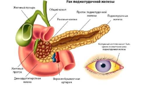 Показанием к операции может быть опасность рака поджелудочной железы