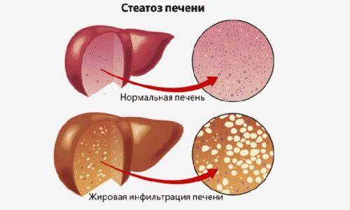 При декомпенсированном диабете происходит поражение печени, в результате чего в ее клетках откладывается жир