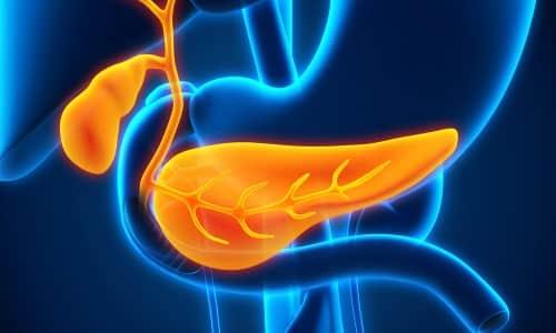 Острый геморрагический панкреатит - тяжелый тип воспаления поджелудочной железы, характеризующийся распадом тканей органа и нарушением гемодинамики