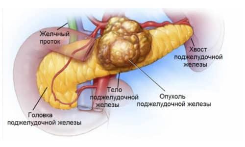 Новообразования поджелудочной железы (код МКБ-10 С. 25, D.13.6-13.7, К 86.2-86.3 и др.) включают большой перечень заболеваний, характеризующихся изменением нормального строения клеток и бесконтрольным делением