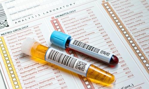Для диагностирования панкреатита применяется много разных лабораторных тестов