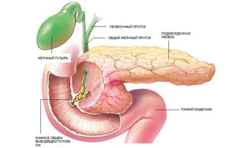 Аберрантная поджелудочная железа - редкая патология, формирующаяся на фоне аномалии развития ЖКТ