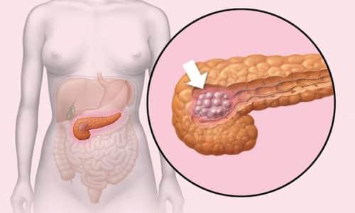Доброкачественные опухоли поджелудочной железы включают липому, гемангиому, фиброму, лейомиому, невриному и шванному и др