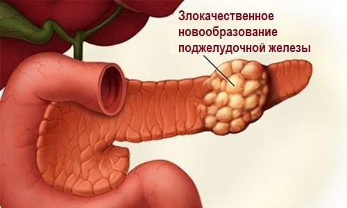 При проведении дополнительных методов исследования для злокачественного новообразования характерными являются очаговые изменения в тканях органа