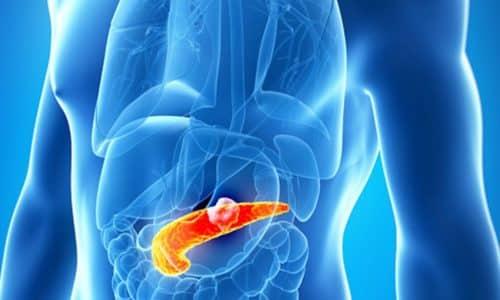 При острой стадии панкреатита запрещено есть любой вид лука