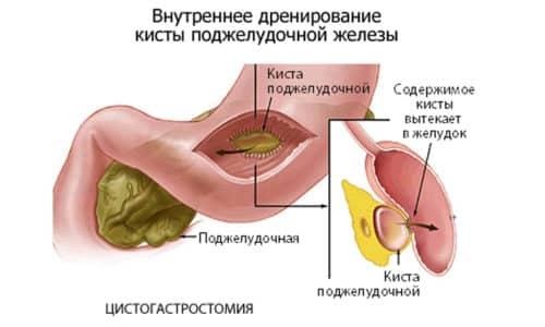 Тяжелая форма подразумевает наличие кист в протоках поджелудочной железы