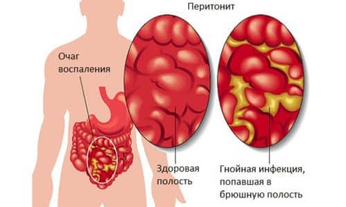 К ранним осложнениям приступа относят перитонит
