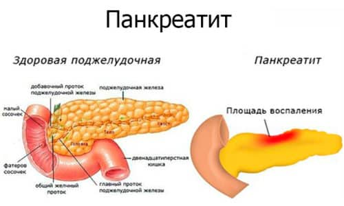 Одной из причин для перекрута или загиба органа может быть перенесенное недавно или протекающее в момент обнаружения деформации железы ее острое воспаление - панкреатит
