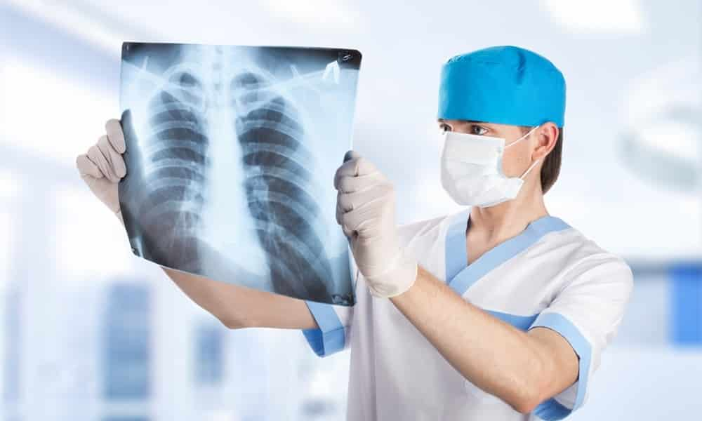 Рентген — помогает выявить размеры, расположение камней и других образований в железе