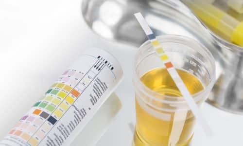 Анализ мочи при подозрениях на панкреатит - доступный способ подтвердить или опровергнуть наличие патологии