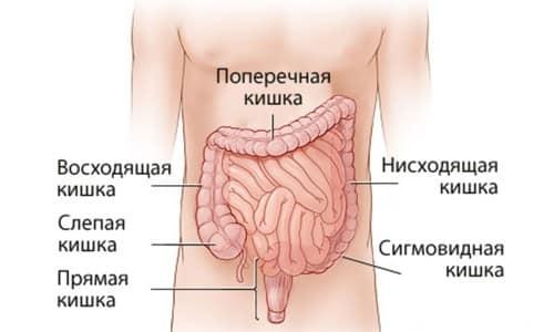 Отсутствие своевременного адекватного лечения чревато появлением непроходимости кишечника