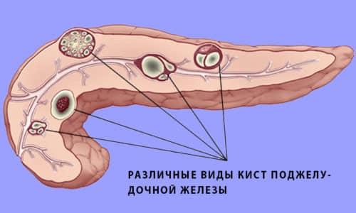 Патология может возникнуть на фоне опухоли