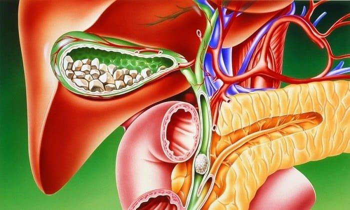 Паренхиматозный панкреатит часто развивается на фоне желчнокаменной болезни