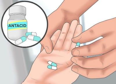 Для лечения гастрита с повышенной кислотностью применяют антациды, в состав которых входят магний и алюминий
