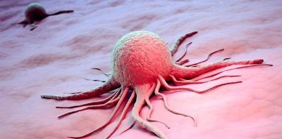 Сильная тошнота и рвота сопровождает онкологические заболевания, после химиотерапии или проведенной процедуры лучевой терапии так же может возникать тошнота и рвота