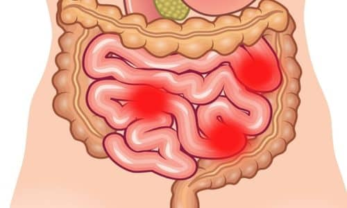 При эрозии кишечника, боль локализуются внизу живота. Часто появляется чередование запоров и поносов
