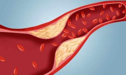 Причиной головокружение может быть в нарушении работы сердечно-сосудистой системы. Холестерин способствует формированию бляшек, которые могут вызывать закупорку сосудов