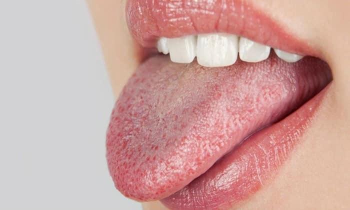 При панкреатите проявляется сухость во рту