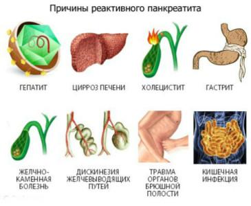 Заболевание является следствием воспалительно-дегенеративных процессов, которые диагностируются в поджелудочной железе человеческого организма