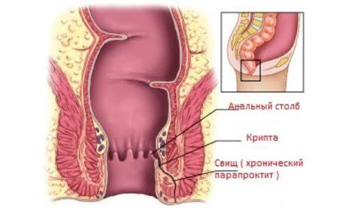Хирургическое лечение при дивертикулезе осуществляется при надобности принятия радикальных мер и при таких осложнениях как, свищи