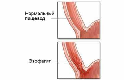 Под эзофагитом подразумевают воспалительное поражение слизистой оболочки пищевода