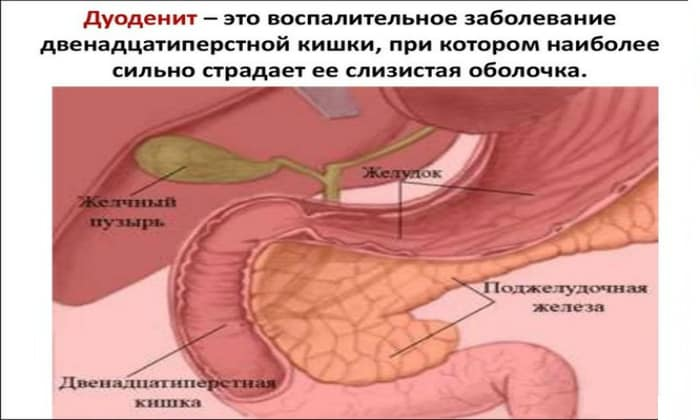 Энтерит - воспаление тонкого кишечника, явление имеет свойство возникать лишь в отдельной области или повреждать весь тонкий кишечник