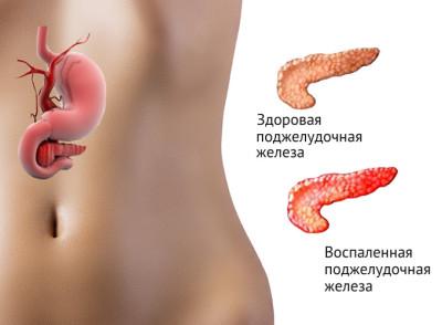 Воспалительный процесс в области поджелудочной железы влияет на ухудшение работы этого органа