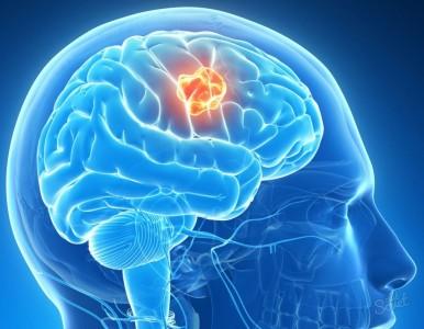 Совокупность двух факторов - головокружения и тошноты указывает на наличие опухоли головного мозга