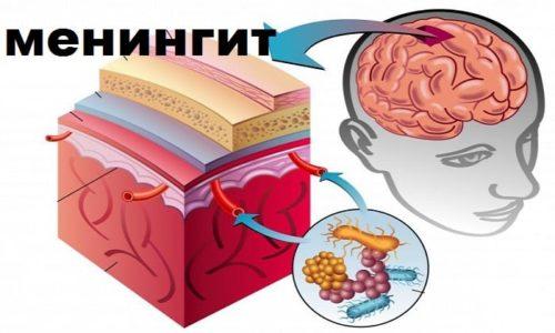 Менингит - это воспаление оболочек спинного и головного мозга, вызванное бактериями.Изначально болезнь похожа на простуду, но позже развиваются опасные для жизни проявления