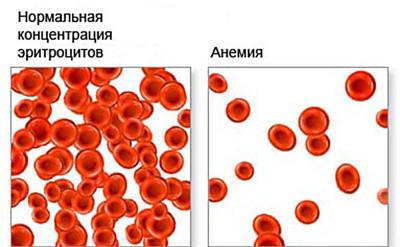 При желудочных кровотечениях кал почти черный. Такой цвет обусловлен анемией