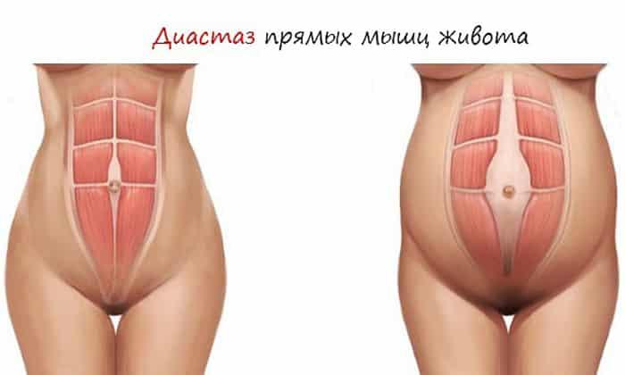 Кроме того боли могут возникать в результате растяжения мышц и связок, находящихся в брюшном прессе