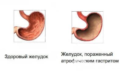 Наиболее опасной формой хронического течения болезни является атрофический гастрит
