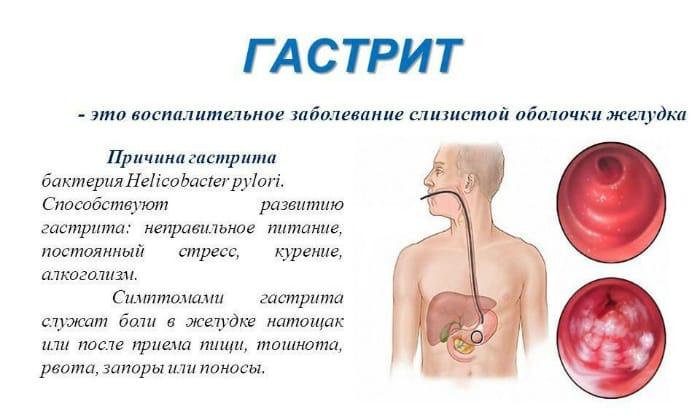 Язвенная болезнь появляется вследствие острого или хронического гастрита