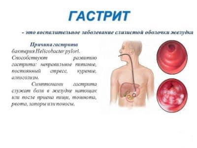 Гастритом называется острое воспалительное воздействие на слизистую оболочку стенок желудка человека, что вызывает огромное количество неприятных симптомов