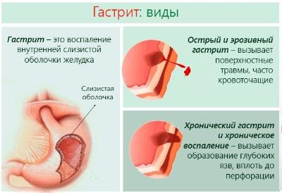 Самое популярное заболевание, затрагивающее орган пищеварения, - это гастрит, или воспаление желудка. Различают острую и хроническую форму