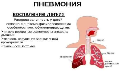 Диафрагмальная грыжа требует своевременного обнаружения и лечения, в противном случае она может привести к пневмонии