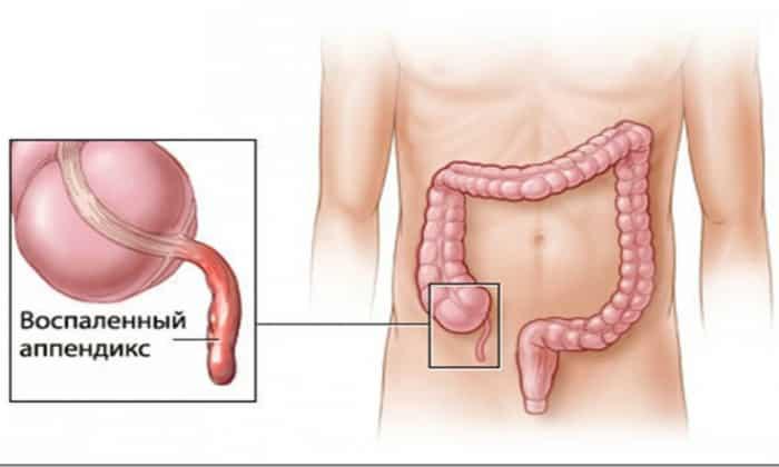 Воспаление аппендикса может вызвать на некоторое время расстройство кишечника
