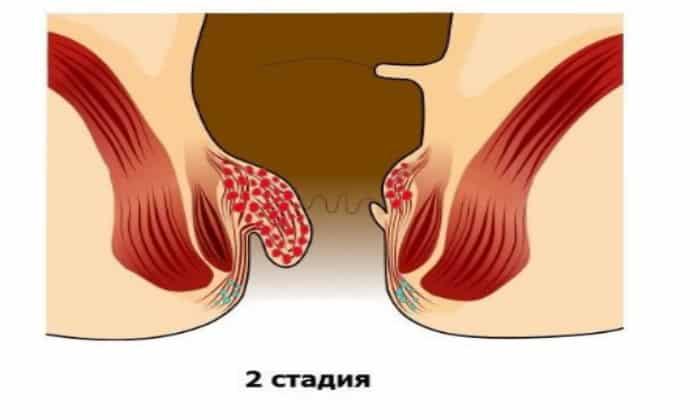 Вторая стадия: наружные узлы проявляют легкую болезненность только при пальпации, а внутренние могут иногда выпадать, но возвращаются назад самостоятельно