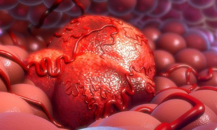 Ощущение боли в желудке в большинстве случаев связано с раком