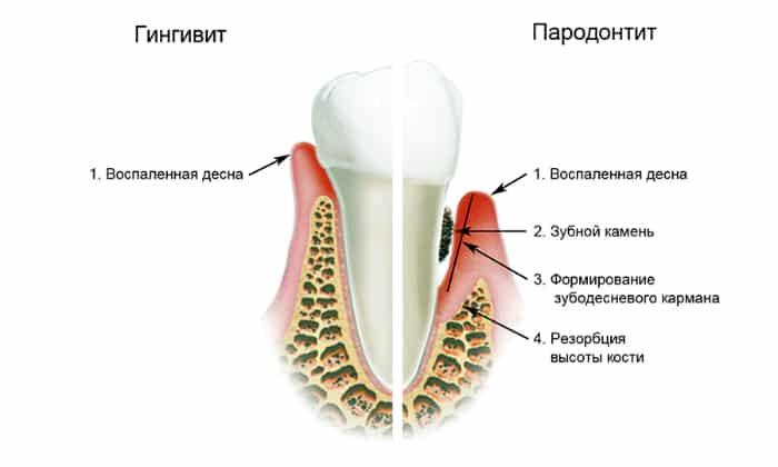Среди стоматологических заболеваний, которые характеризуются привкусом кислоты во рту, можно отметить гингивит или воспалительное заболевание десен.